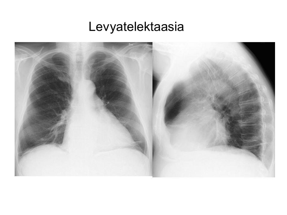 Levyatelektaasia 71 V MIES ASTMA DILATOIVA KARDIOMYOPATIA
