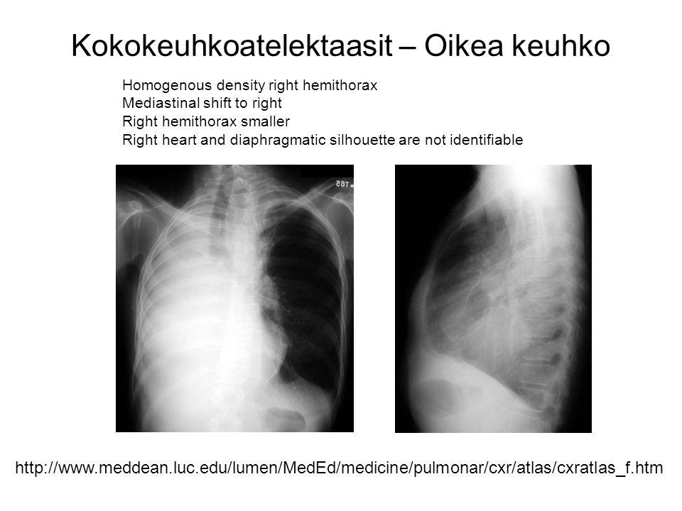 Kokokeuhkoatelektaasit – Oikea keuhko