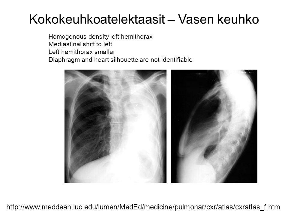 Kokokeuhkoatelektaasit – Vasen keuhko