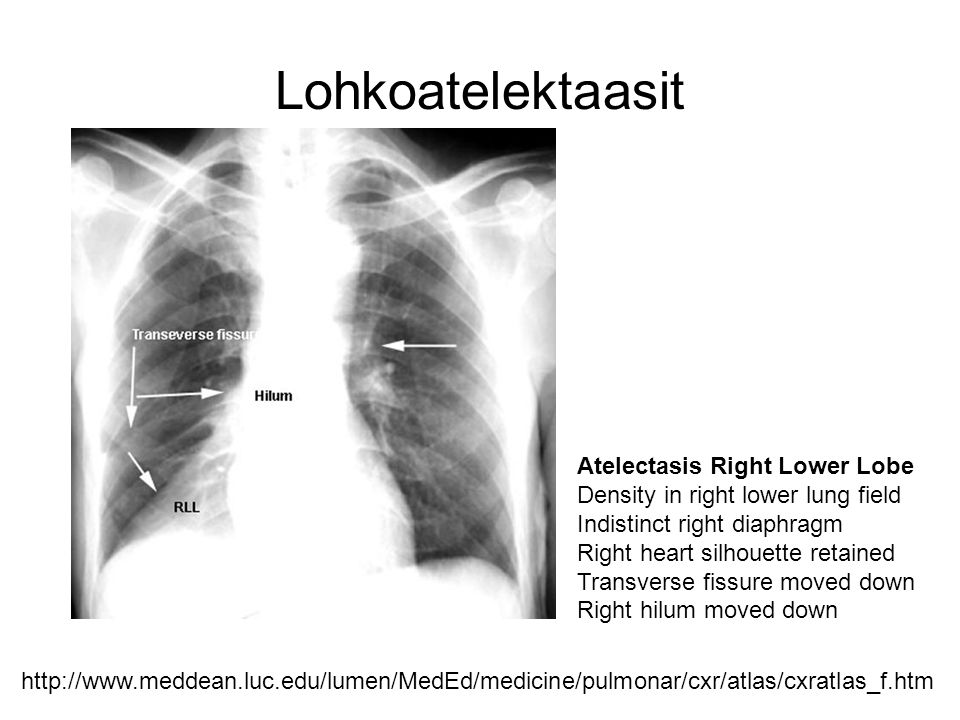 Lohkoatelektaasit Atelectasis Right Lower Lobe