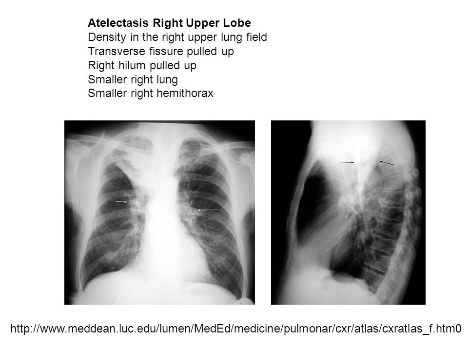 Atelectasis Right Upper Lobe