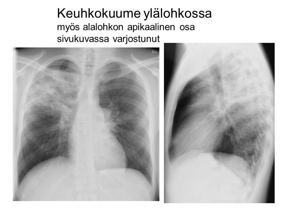 Keuhkokuume ylälohkossa