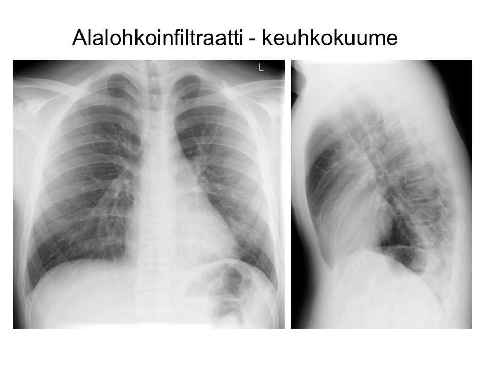 Alalohkoinfiltraatti - keuhkokuume