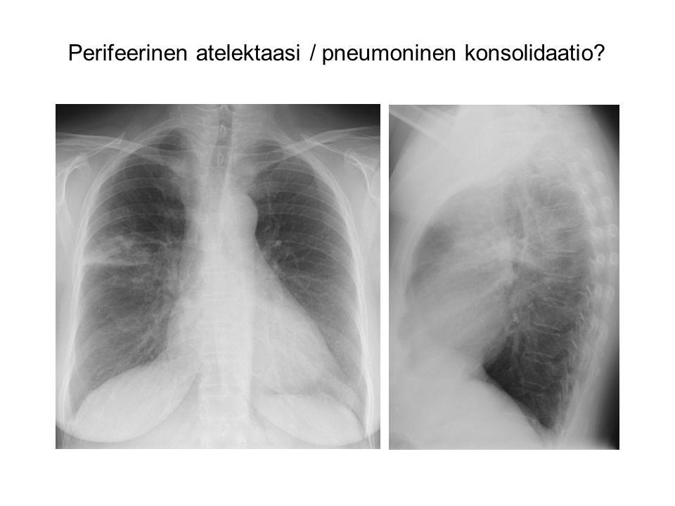 Perifeerinen atelektaasi / pneumoninen konsolidaatio