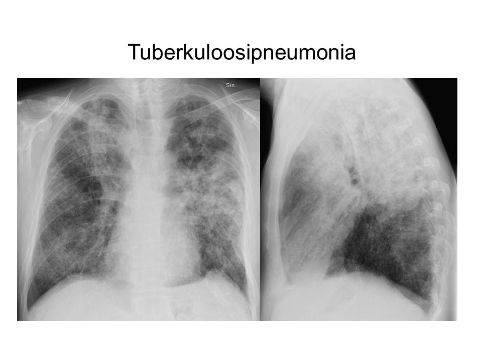 Tuberkuloosipneumonia