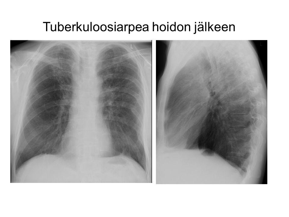 Tuberkuloosiarpea hoidon jälkeen