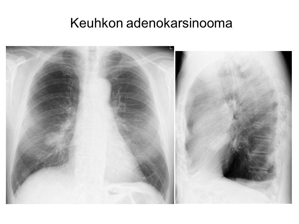 Keuhkon adenokarsinooma