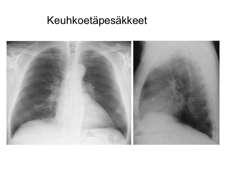 Keuhkoetäpesäkkeet MUNUAISSYÖVÄN ETÄPESÄKKEET