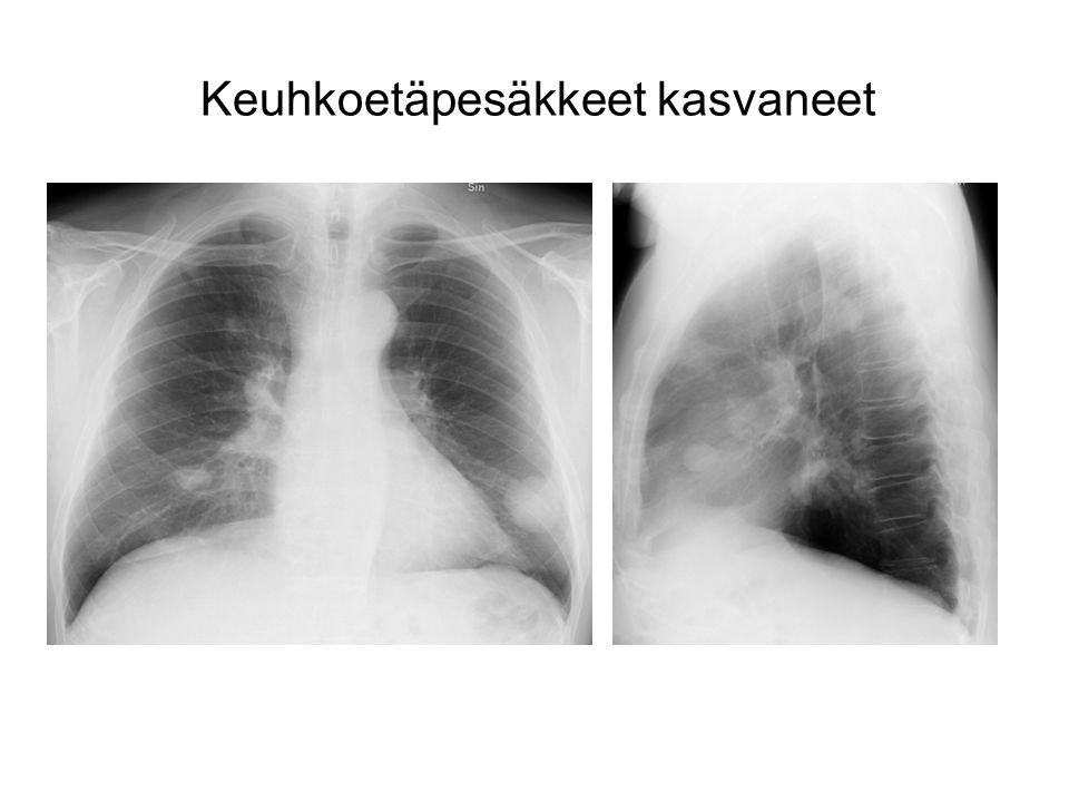 Keuhkoetäpesäkkeet kasvaneet