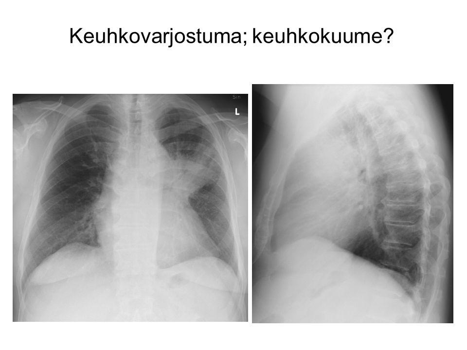 Keuhkovarjostuma; keuhkokuume