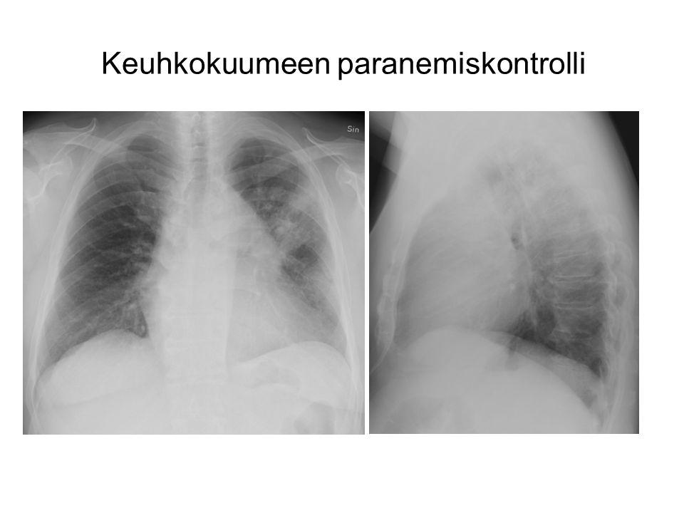 Keuhkokuumeen paranemiskontrolli