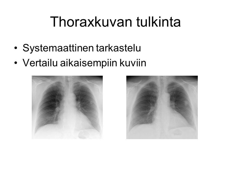 Thoraxkuvan tulkinta Systemaattinen tarkastelu