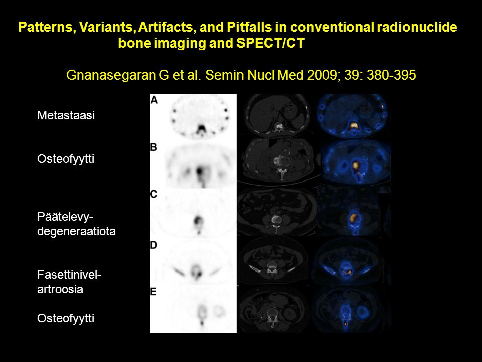 bone imaging and SPECT/CT