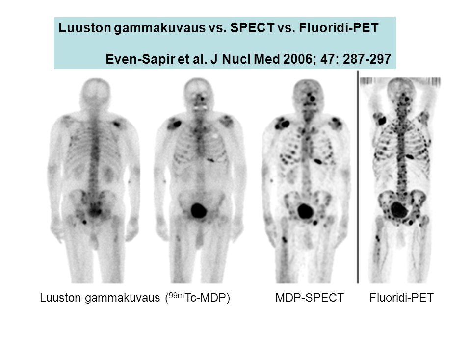 Luuston gammakuvaus vs. SPECT vs. Fluoridi-PET