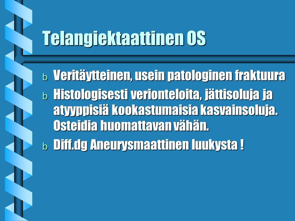 Telangiektaattinen OS