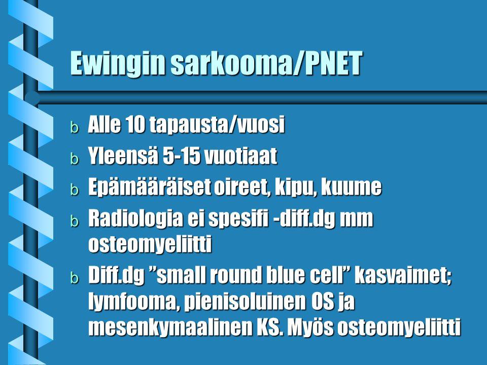 Ewingin sarkooma/PNET