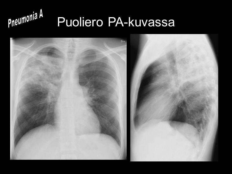 Pneumonia A Puoliero PA-kuvassa
