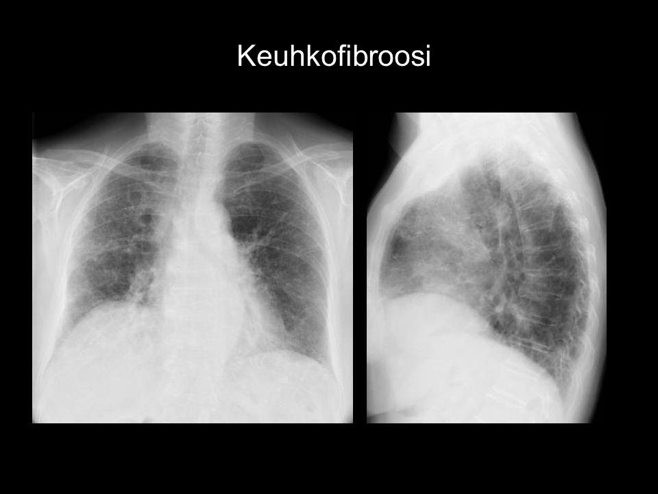 Keuhkofibroosi 82 V ROUVA UIP FIBROOSIA SEURATTU STEROIDIHOITO