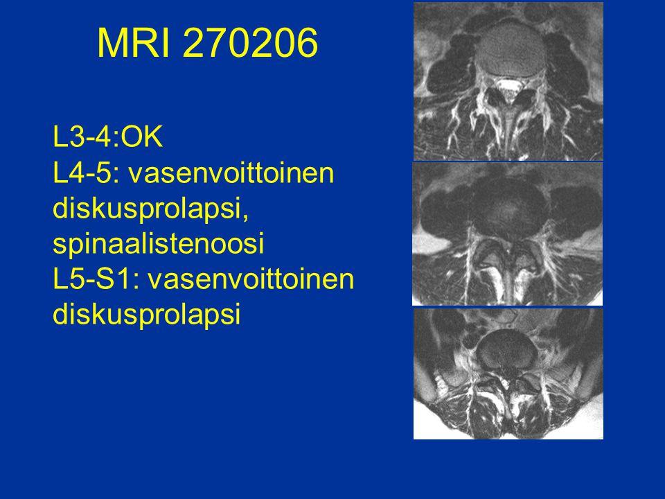 MRI 270206 L3-4:OK L4-5: vasenvoittoinen diskusprolapsi, spinaalistenoosi L5-S1: vasenvoittoinen diskusprolapsi.