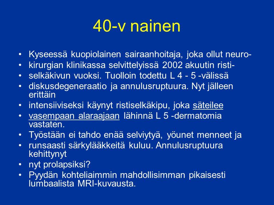 40-v nainen Kyseessä kuopiolainen sairaanhoitaja, joka ollut neuro-
