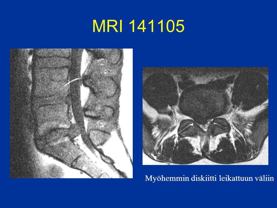 MRI 141105 Myöhemmin diskiitti leikattuun väliin