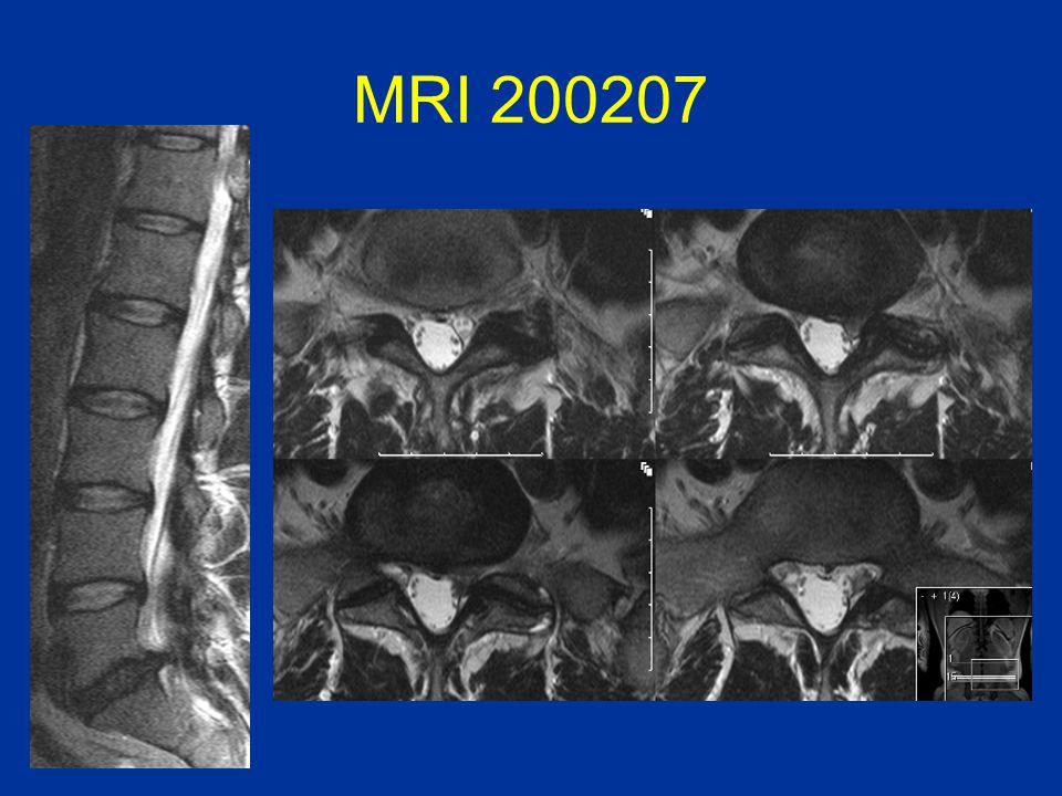 MRI 200207