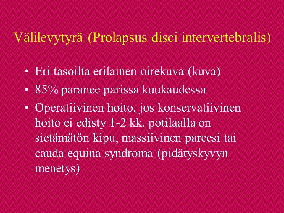 Välilevytyrä (Prolapsus disci intervertebralis)