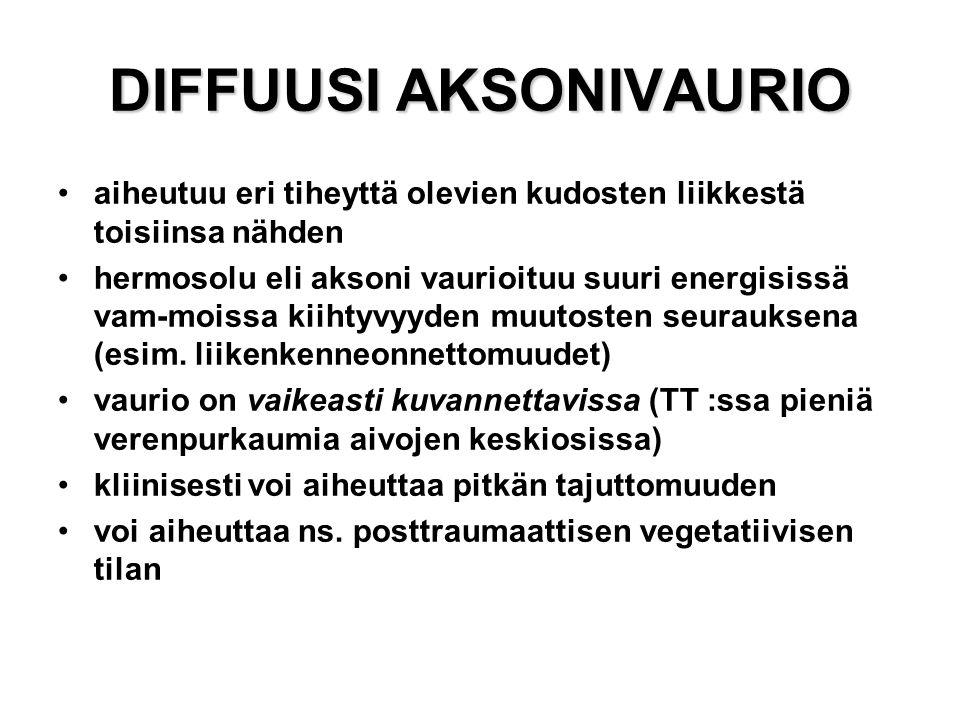 DIFFUUSI AKSONIVAURIO