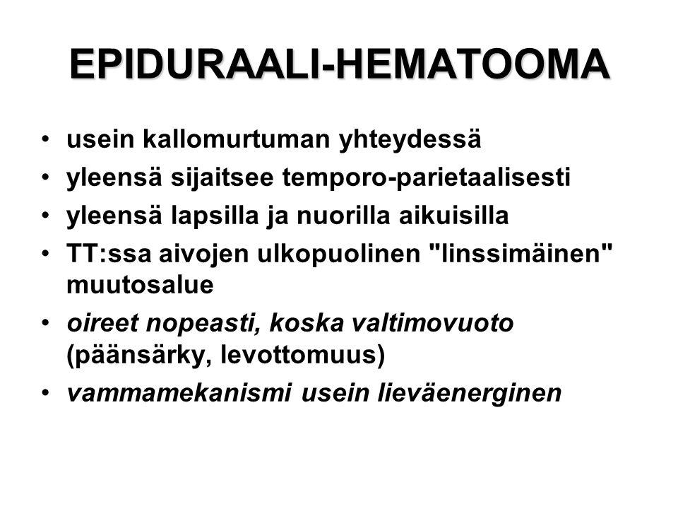 EPIDURAALI-HEMATOOMA
