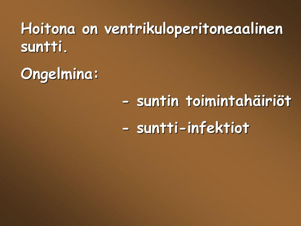 Hoitona on ventrikuloperitoneaalinen suntti.