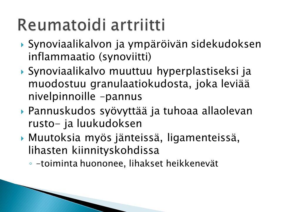 Reumatoidi artriitti Synoviaalikalvon ja ympäröivän sidekudoksen inflammaatio (synoviitti)