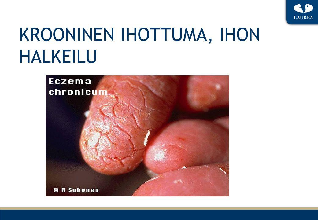 KROONINEN IHOTTUMA, IHON HALKEILU