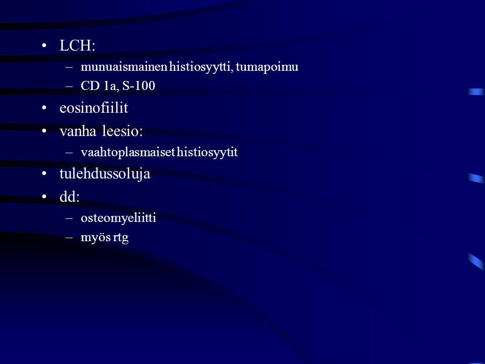 LCH: eosinofiilit vanha leesio: tulehdussoluja dd: