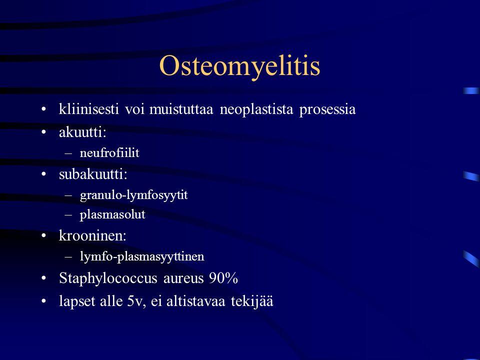 Osteomyelitis kliinisesti voi muistuttaa neoplastista prosessia