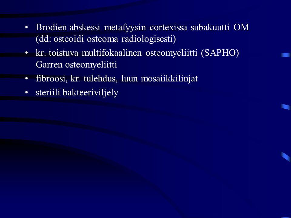 Brodien abskessi metafyysin cortexissa subakuutti OM (dd: osteoidi osteoma radiologisesti)