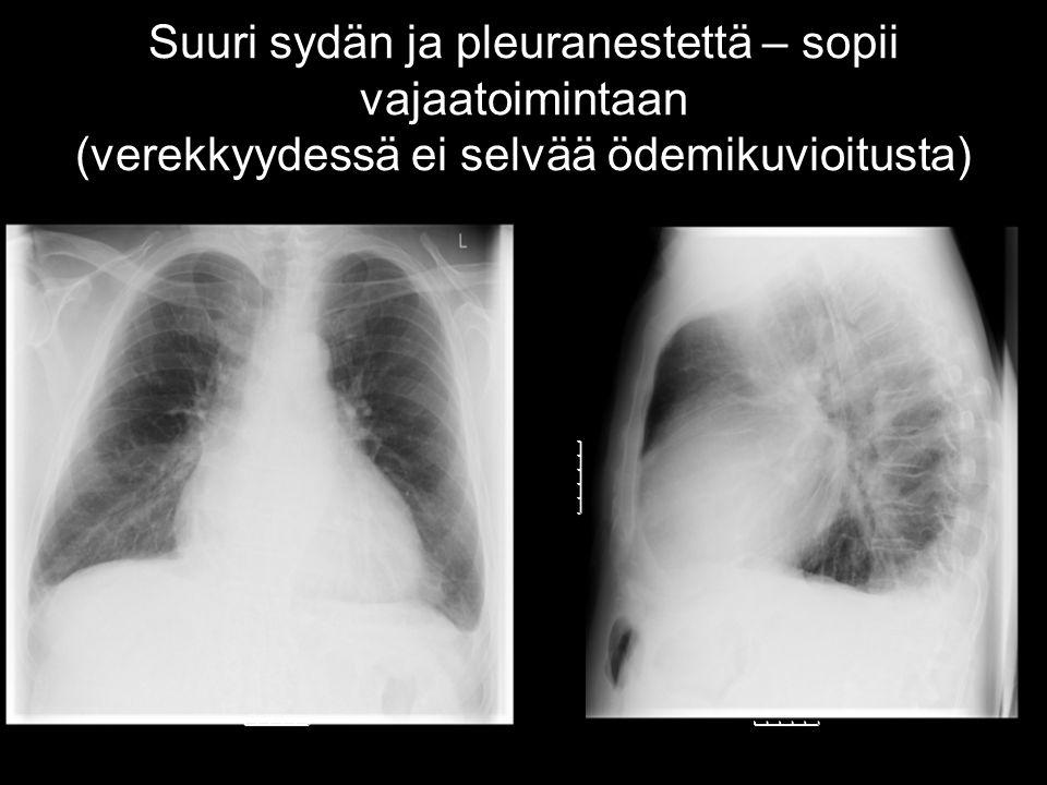 Suuri sydän ja pleuranestettä – sopii vajaatoimintaan (verekkyydessä ei selvää ödemikuvioitusta)