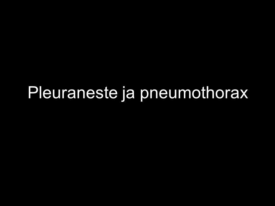 Pleuraneste ja pneumothorax