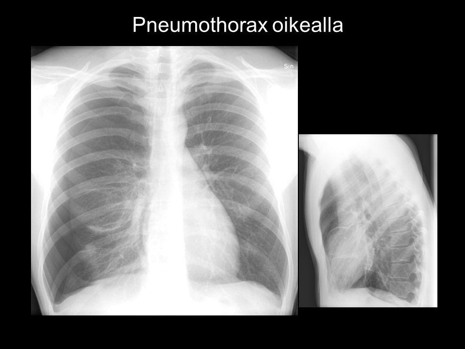 Pneumothorax oikealla