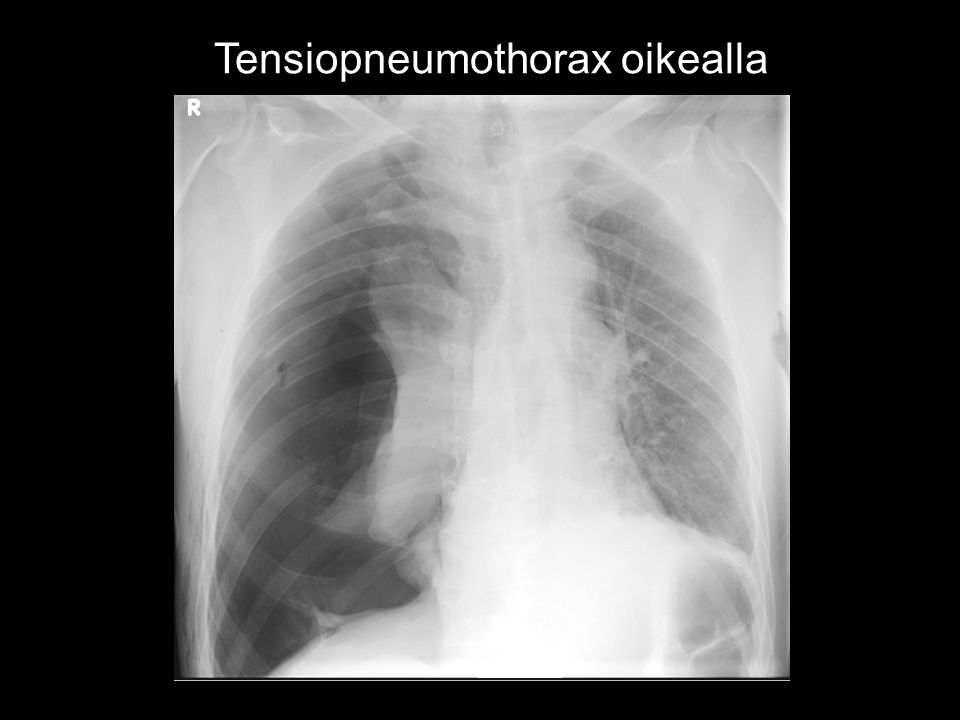 Tensiopneumothorax oikealla