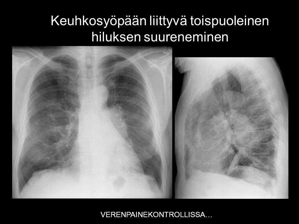 Keuhkosyöpään liittyvä toispuoleinen hiluksen suureneminen
