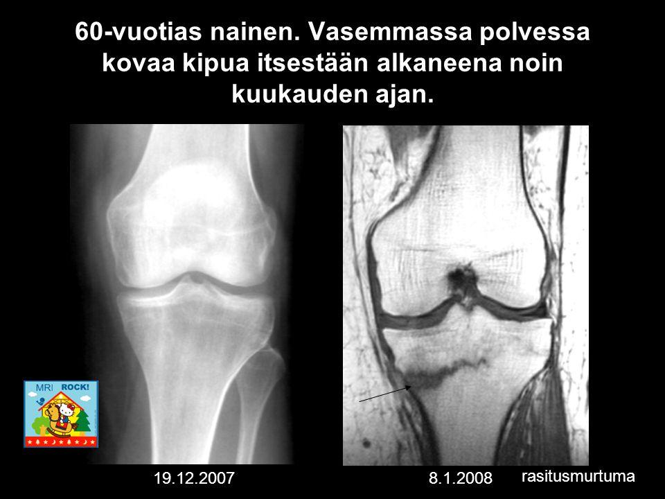 60-vuotias nainen. Vasemmassa polvessa kovaa kipua itsestään alkaneena noin kuukauden ajan.