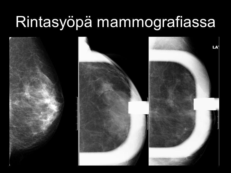 Rintasyöpä mammografiassa