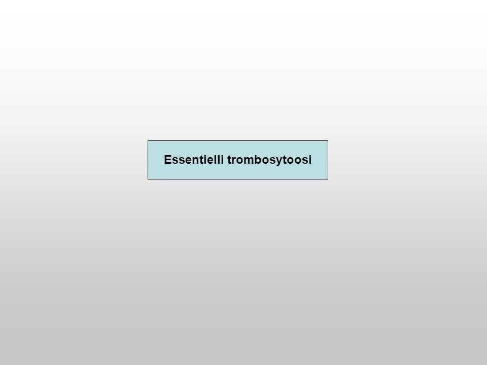 Essentielli trombosytoosi