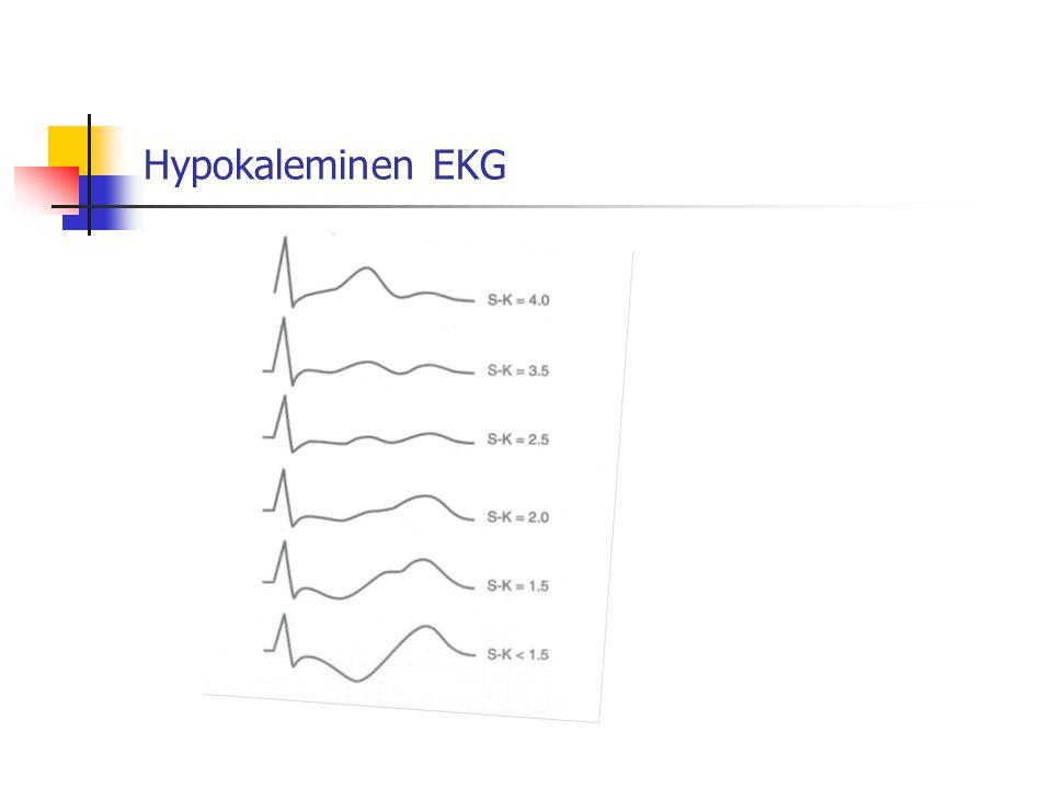 Hypokaleminen EKG