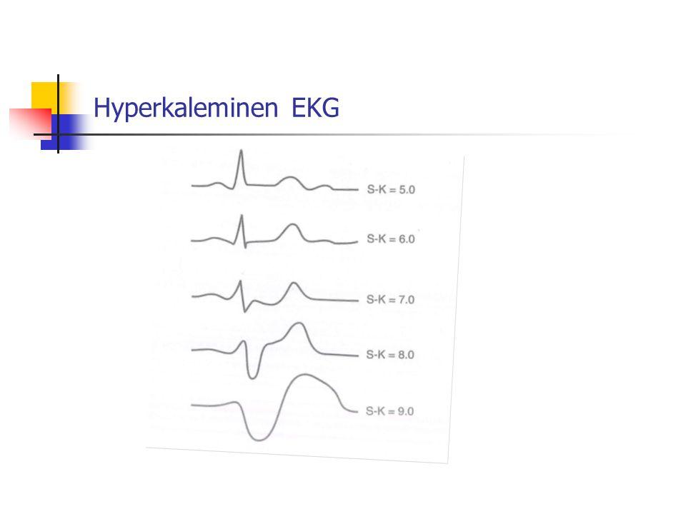 Hyperkaleminen EKG
