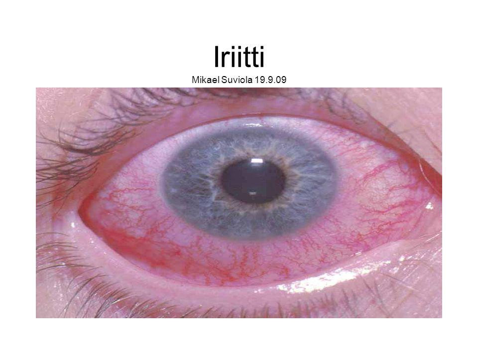 Iriitti Mikael Suviola 19.9.09