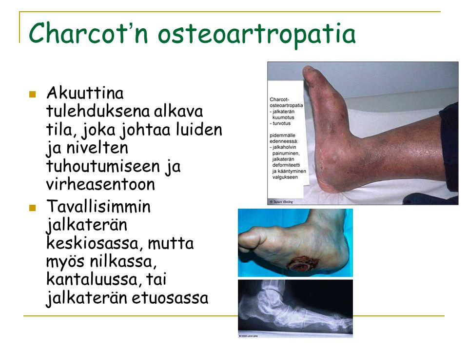 Charcot'n osteoartropatia