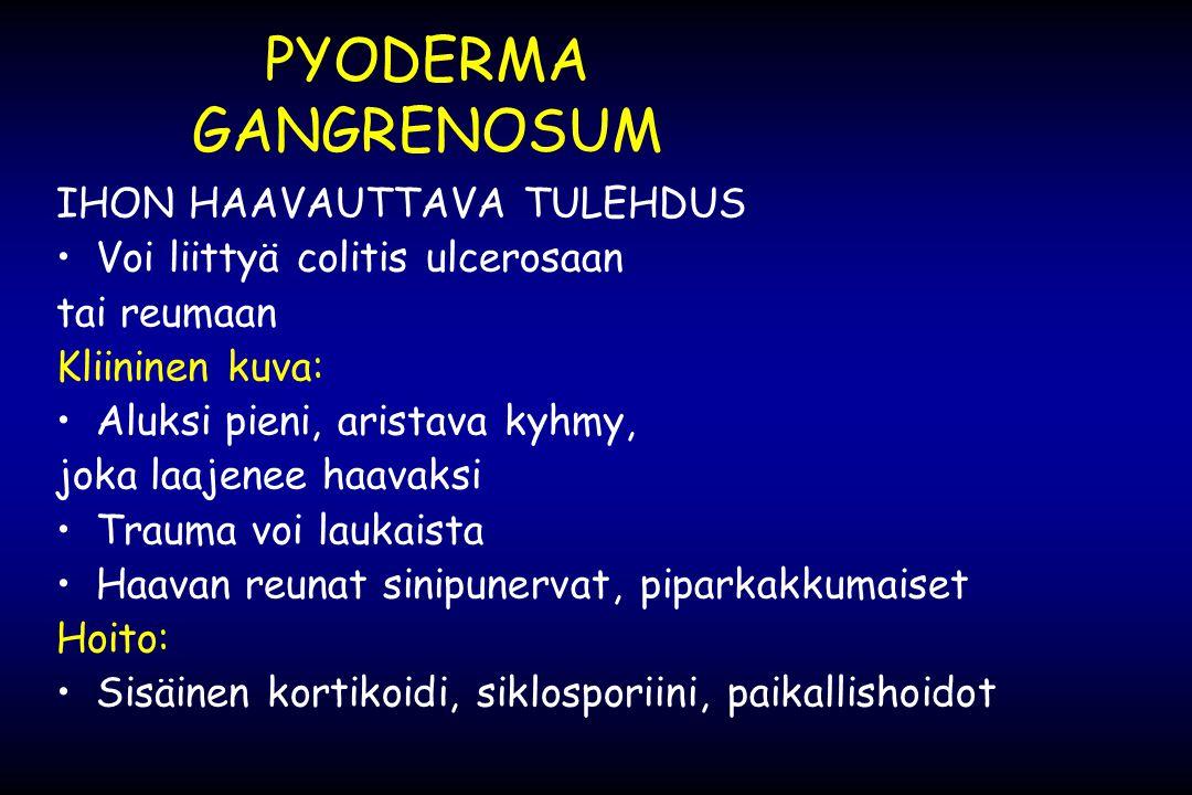 PYODERMA GANGRENOSUM IHON HAAVAUTTAVA TULEHDUS