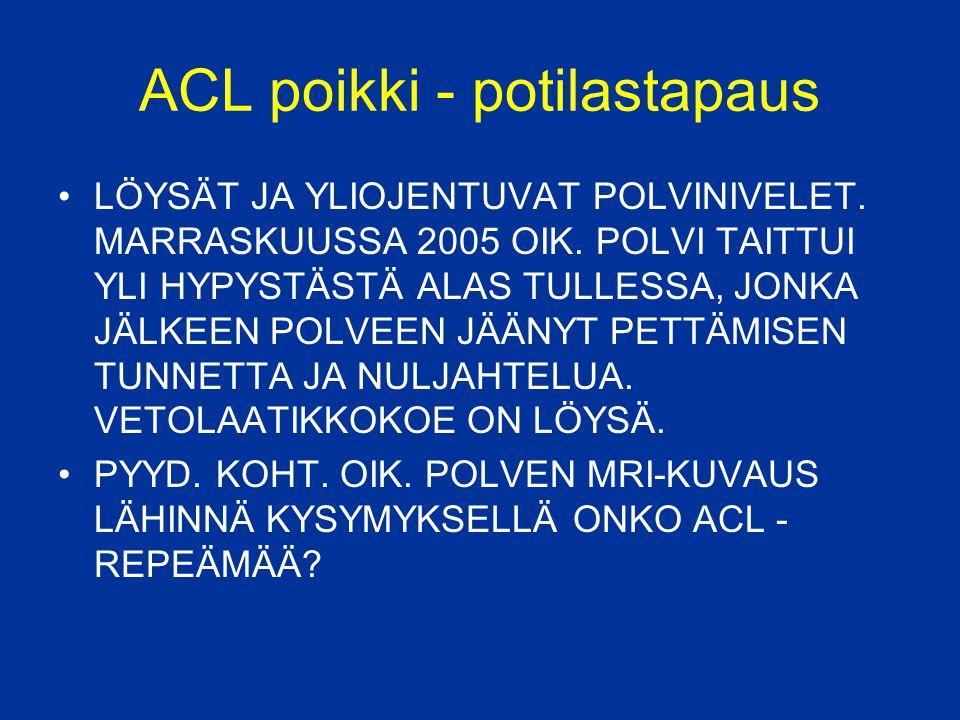 ACL poikki - potilastapaus