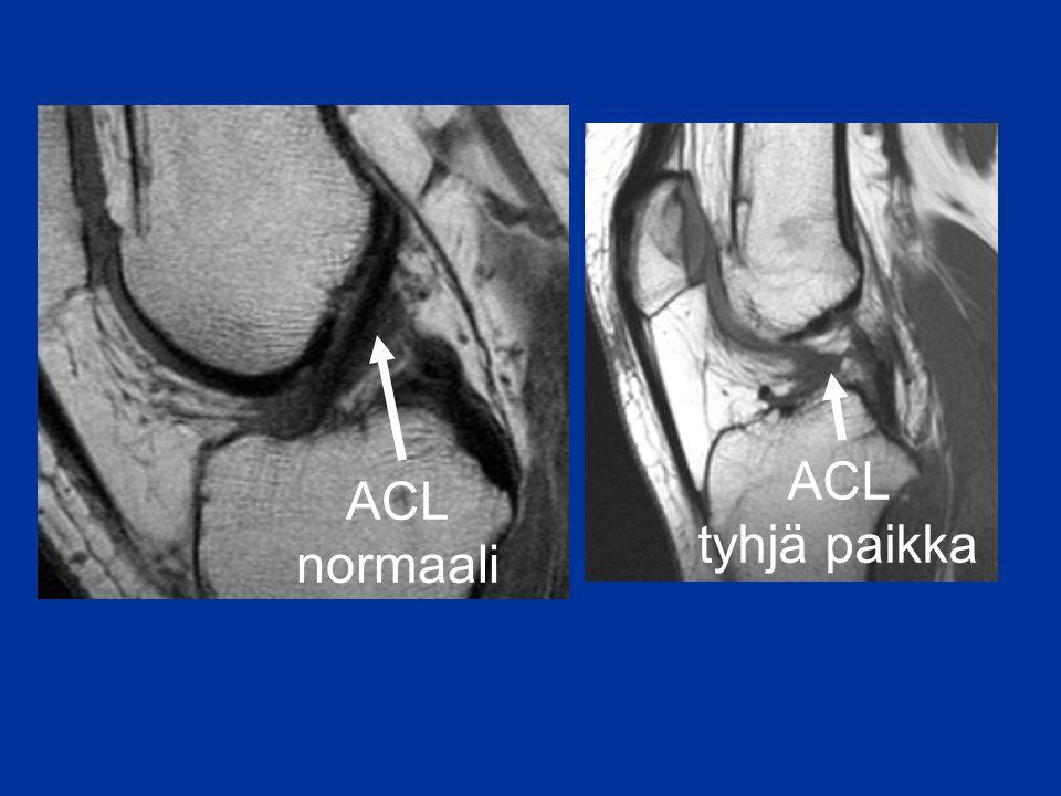 ACL tyhjä paikka ACL normaali